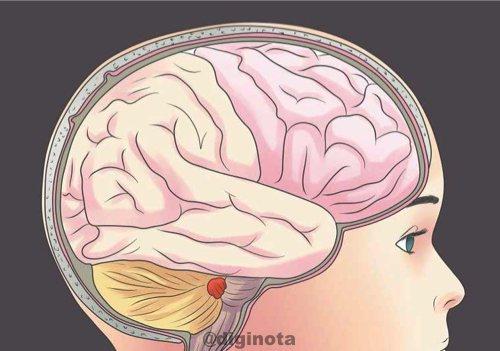 Todo sobre el Chikungunya y cómo recuperarse 12
