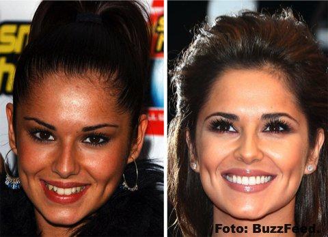 La sonrisa perfecta no siempre fue parte de estos artistas gracias a la ORTODONCIA INSTANTÁNEA 6