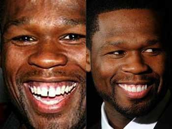 El antes y después de algunos famosos que se arreglaron los dientes fotos